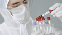 12 zachorowań na Podkarpaciu. Zobacz raport o COVID-19