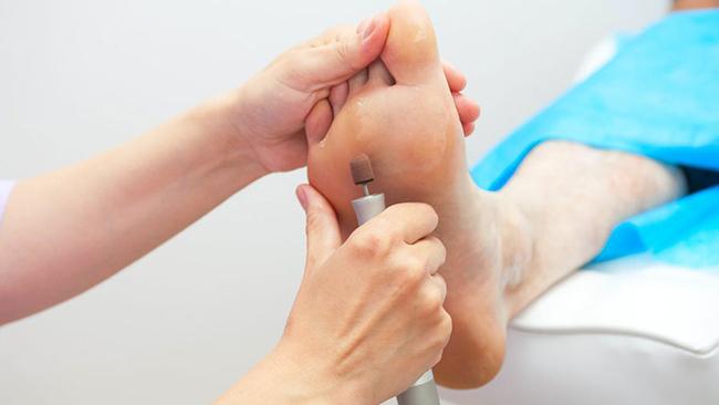 Podologia - na temat leczenia suchości stóp