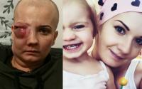 Agnieszka walczy z nowotworem. Pragnie wyzdrowieć i być ze swoją córeczką. Apeluje o pomoc