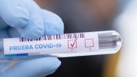Dwa zakażenia COVID-19 w Krośnie