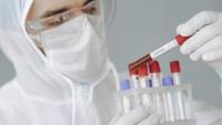 Na Podkarpaciu wzrasta liczba zachorowań na COVID-19